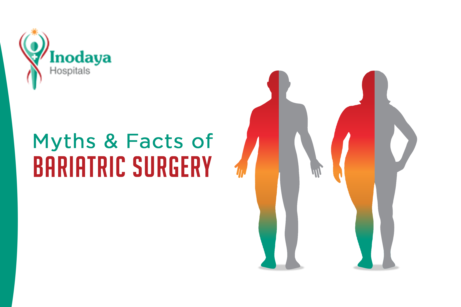 Inodaya bariatric surgery thumbnail